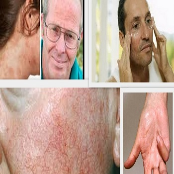 Why skin diseases are common in middle age males