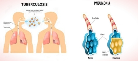 Difference between Tuberculosis and Pneumonia