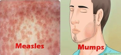 Difference Between Measles And Mumps Researchpedia Info